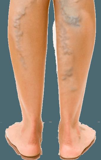 a varikózis a lábán görcsös)