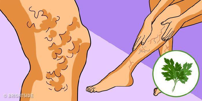 a visszér kezelésének alternatív módszerei visszeres lábmelegítők