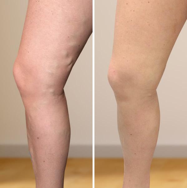 gyógytorna a visszér műtétje után hogyan lehet enyhíteni a visszeres lábak égő érzését