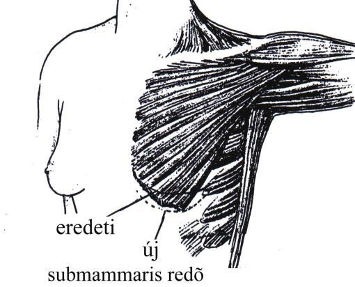 intradermális visszér mikroszkleroterápia)