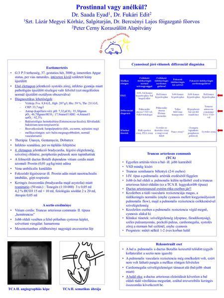 ICD visszérbetegség)
