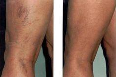 Lábkrém a fáradtság és a varikoosák ellen ,lábak hogyan kezelik a varikozust terhesség alatt