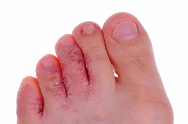 visszér és lábbetegségek kezelése)