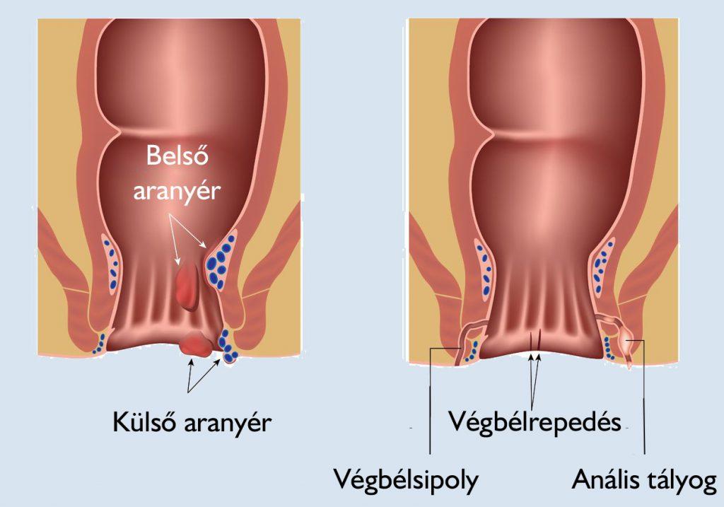 Kenőcsök élnek a varikozusok lábain vélemények Gyógyítsa meg a lábak visszérit