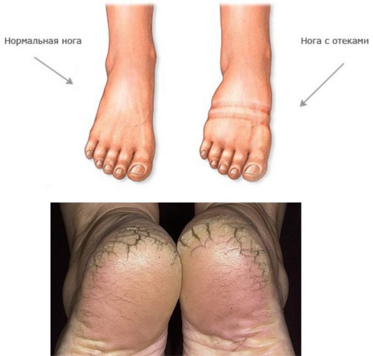 hogy néz ki a varikózis a láb belsejéből)