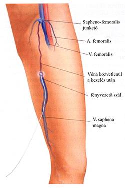 az alsó végtagok visszérének műtéti kezelése lézerrel)