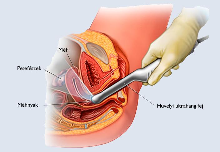 nőknél a kismedencei szervek varikózisai