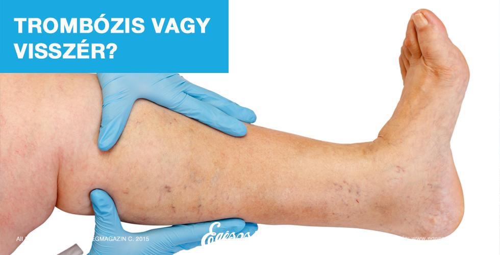 a lábak visszérgyulladása gyógyszerekkel történő kezelés)