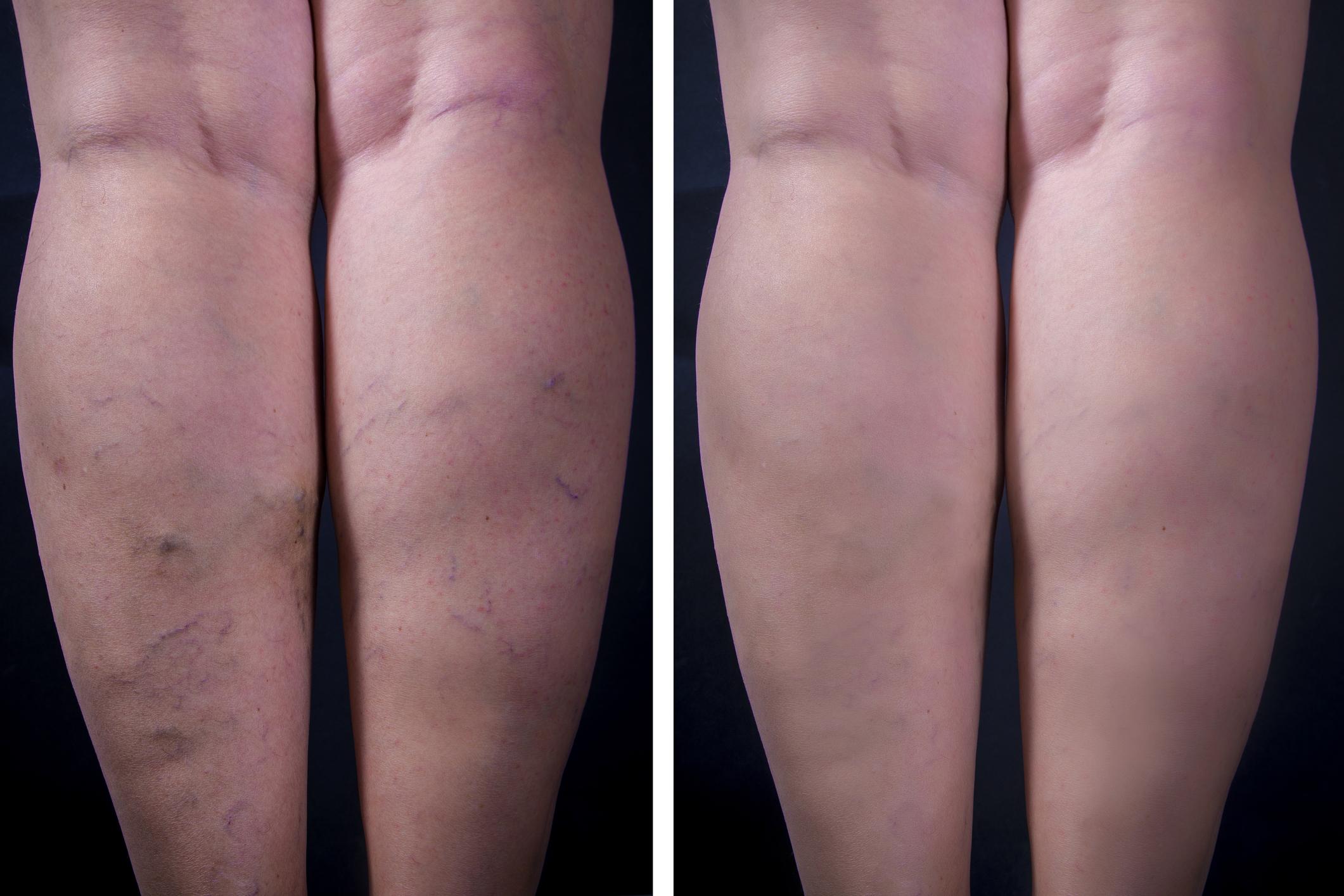 egészséges lábak visszér nélkül