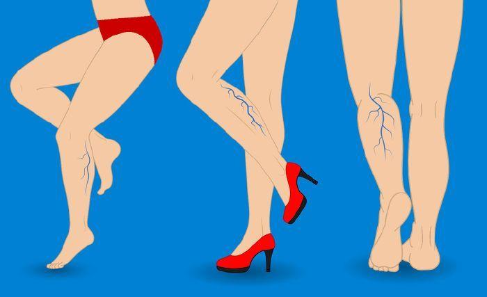 erysipelák a visszér hátterében hogyan lehet enyhíteni a visszeres lábfájdalmat