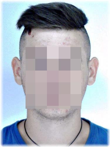 férfi 20 éves visszér)
