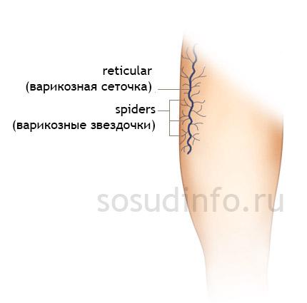 hogyan lehet gyógyítani a retikuláris varikózisokat
