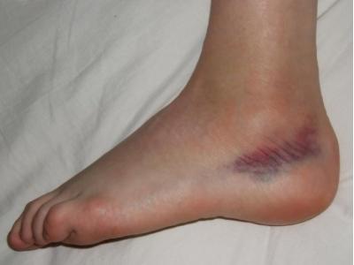 mi okozhatja a lábak varikózisát