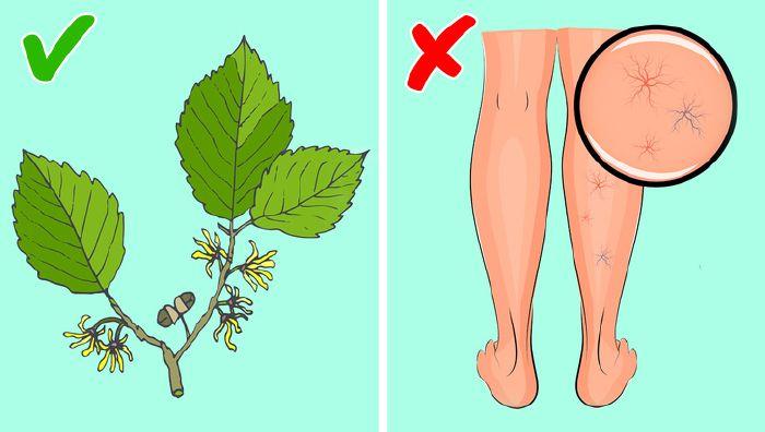 növények visszér kezelésére)