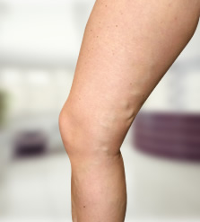 Hogyan kell kiválasztani és használni a kompressziós harisnyát műtét után? - Tünetek
