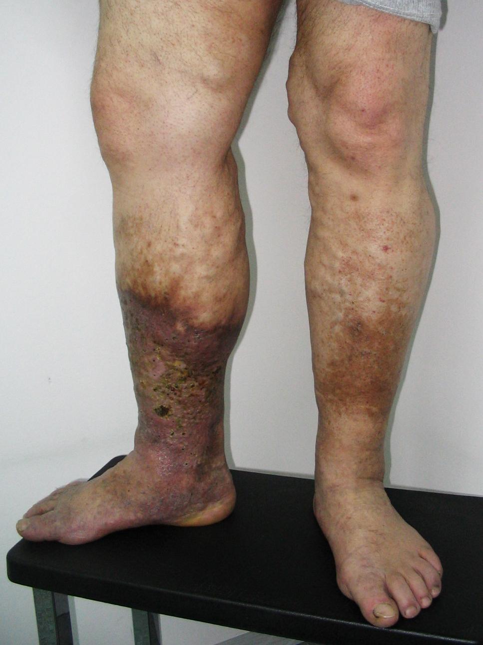 Visszér vagy trombózis: így deríthetjük ki - EgészségKalauz