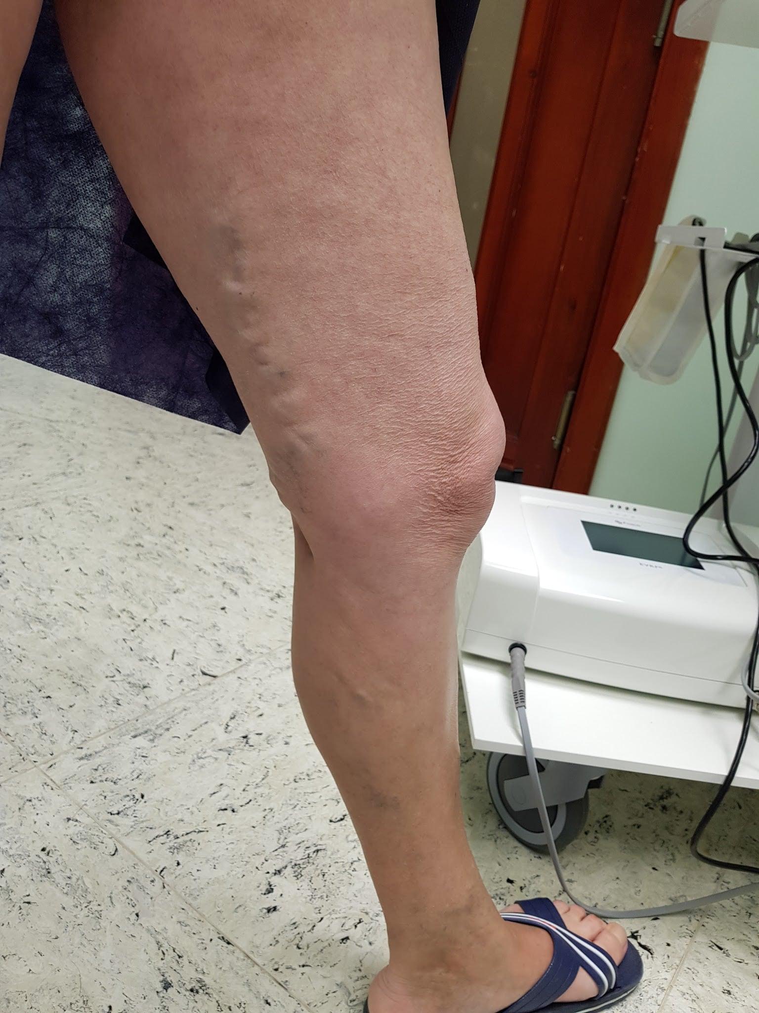Visszér a szkleroterápia előtt és után fotó Esztétikai beavatkozások