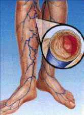 mi hígítja a visszér vérét sebek visszér kezelés után