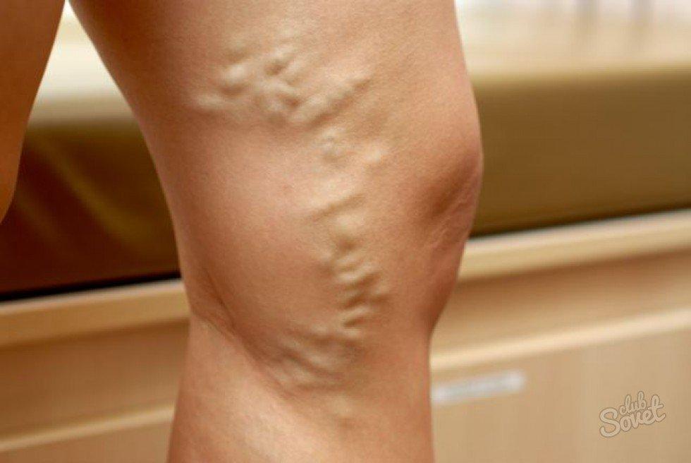 visszér dudorok a lábakon mit kell tenni miért jelenik meg a visszér terhes nőknél